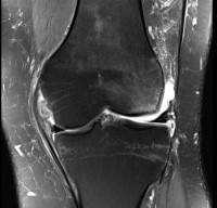 Anterior-Cruciate-Ligament-Disruption-1b.jpg