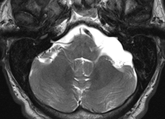 arachnoid cyst — clinical mri, Skeleton