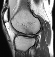 Articular-Cartilage-Defect-MSK2Image2.jpg