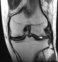Articular-Cartilage-Defect-MSK2Image3.jpg