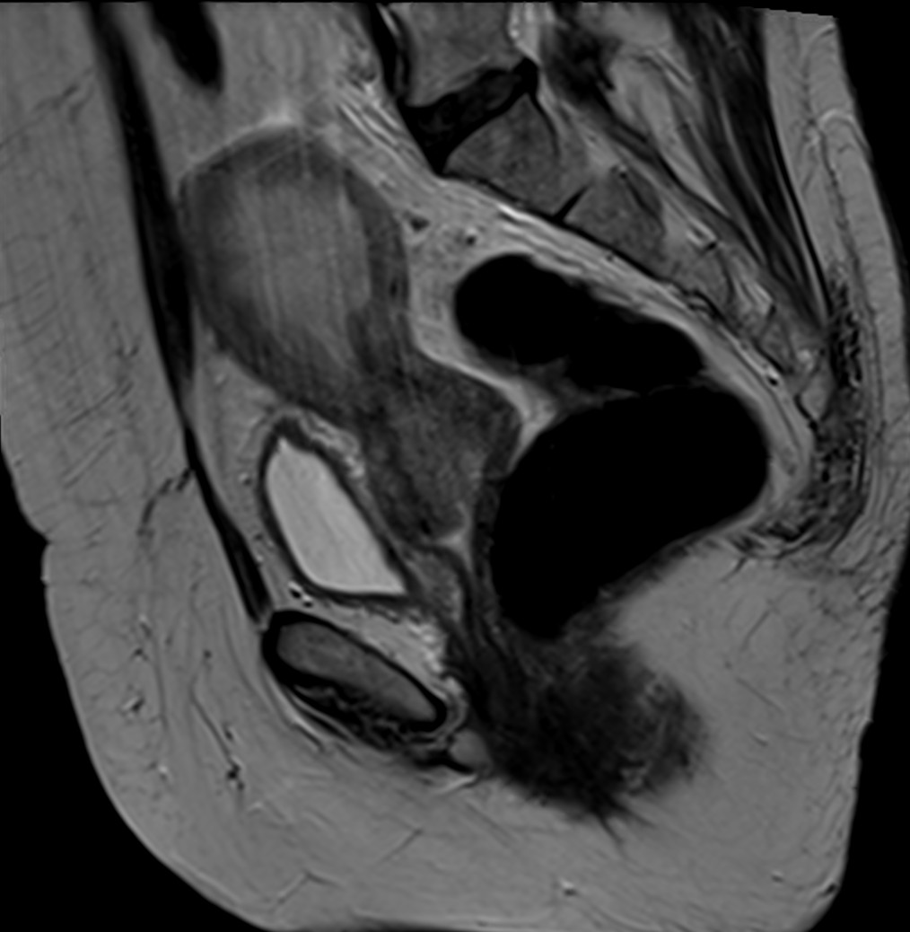 Cervical cancer clinical mri cervical cancer body4image1g ccuart Image collections