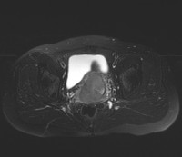 Cervical-Carcinoma-B-Axi-T2WI.jpg