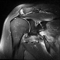 Fracture-of-the-Scapula-MSK_3_Image_2_small.jpg