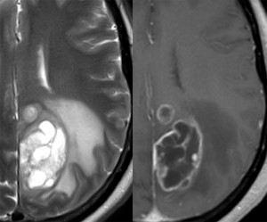 Glioblastoma-Multiforme-T2T1-POST-4488590-2.375x1.jpg