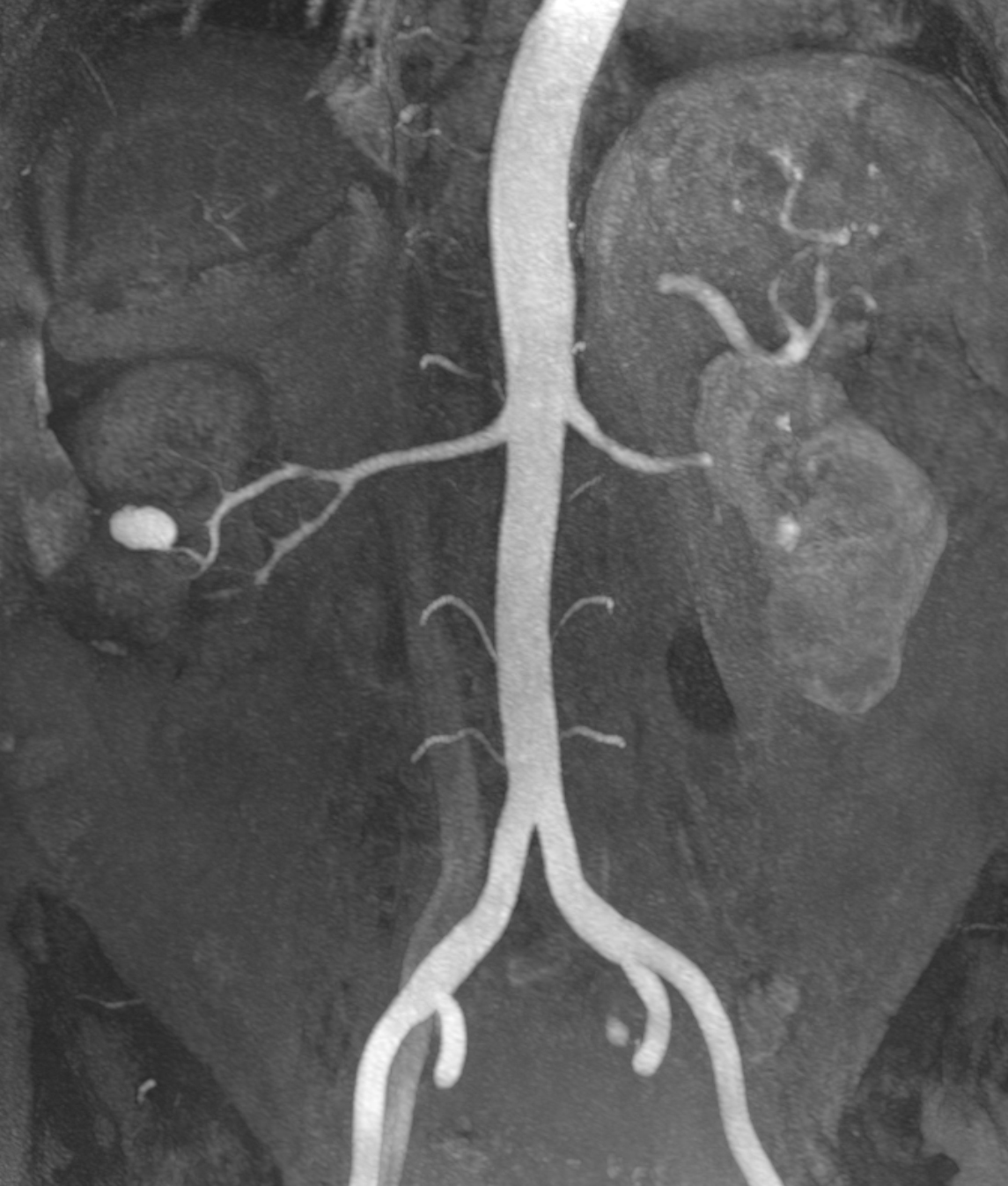 Mra False Aneurysm Of The Renal Artery Clinical Mri
