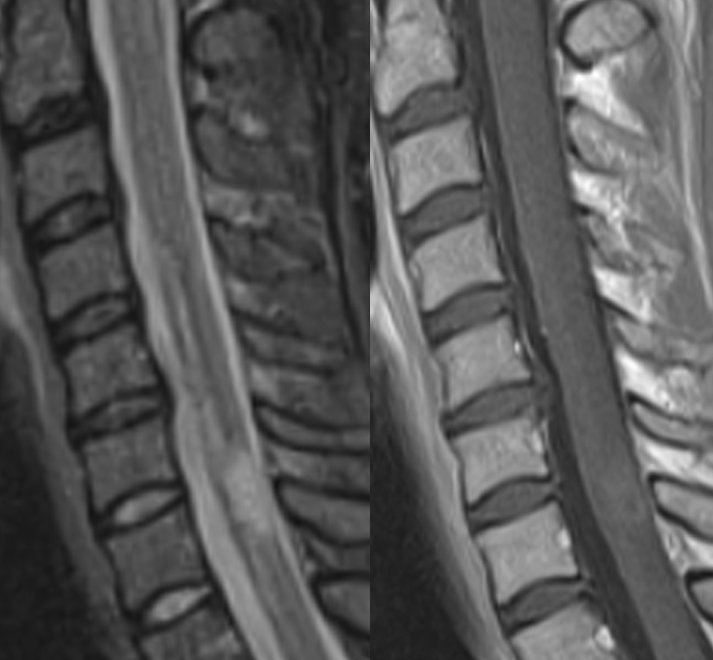 Multiple sclerosis (cervical spinal cord) — Clinical MRI