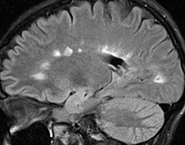multiple sclerosis cervical spinal cord clinical mri