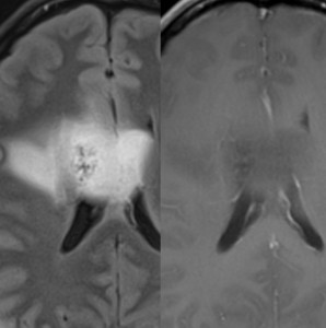 Oligoastrocytoma-Jan-2013.jpg