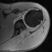 Perthes-Lesion-B.jpg