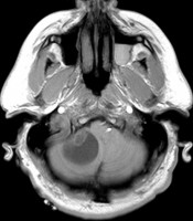 Right-cerebellar-Neuro312image1.jpg
