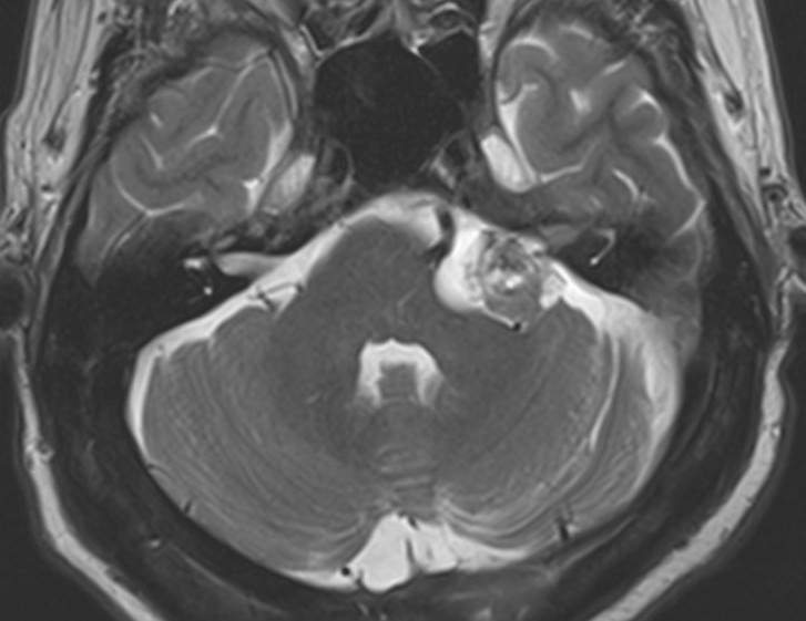 Vestibular Schwannoma — Clinical MRI