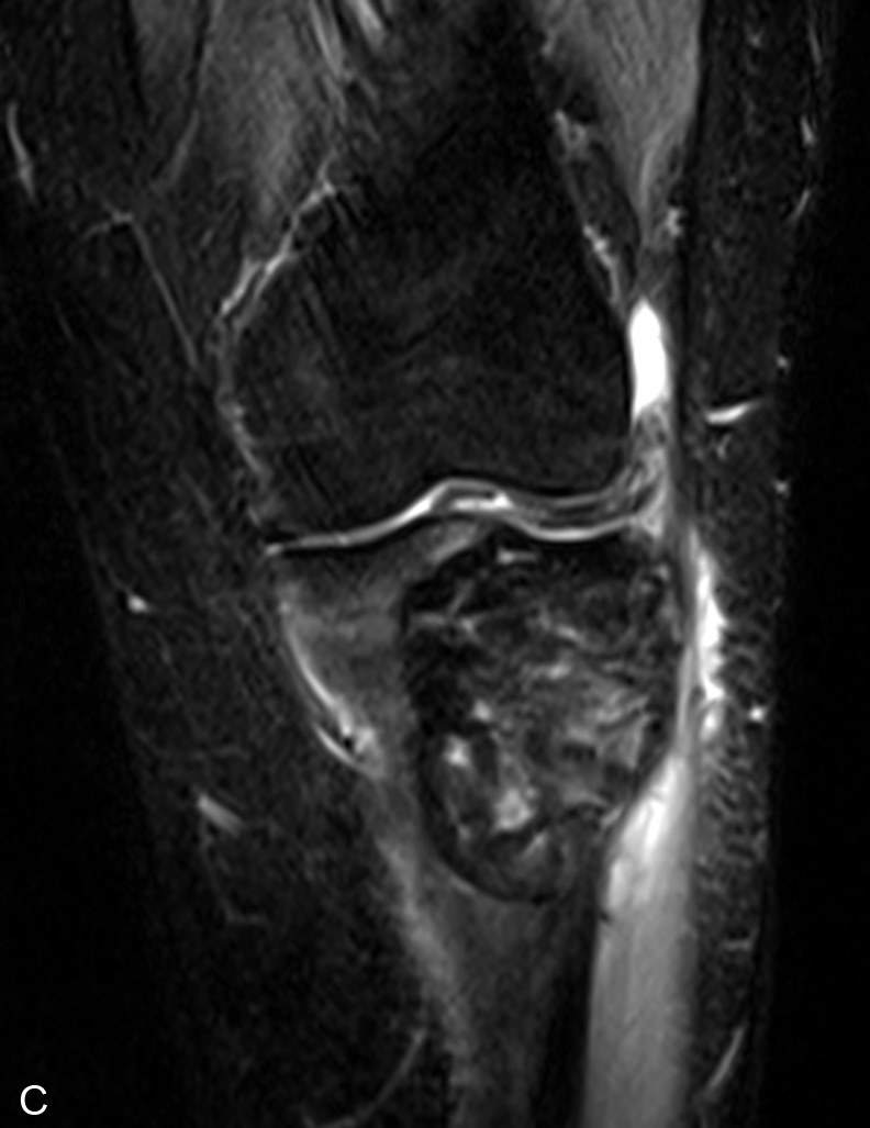 Giant cell tumor — Clinical MRI