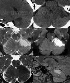 Acute superior cerebellar artery infarction, with an accompanying small unilateral pontine infarct