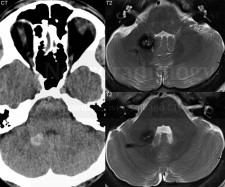 Cavernous malformation, with an associated developmental venous anomaly