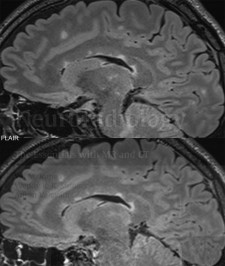 Multiple sclerosis, interval development of a new small callosal lesion on a 2 year follow-up exam 2