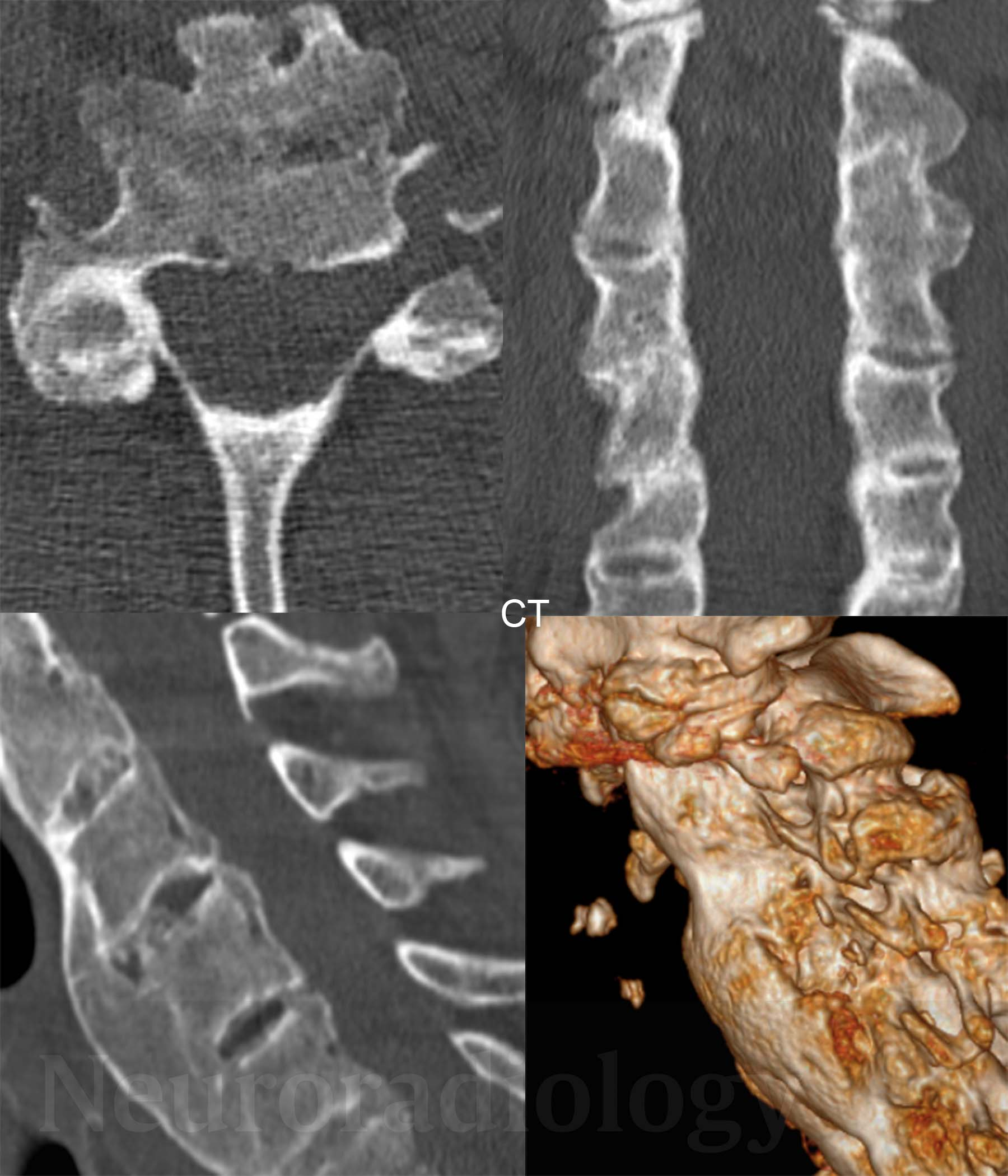 DISH (diffuse idiopathic skeletal hyperostosis) in the cervical ...