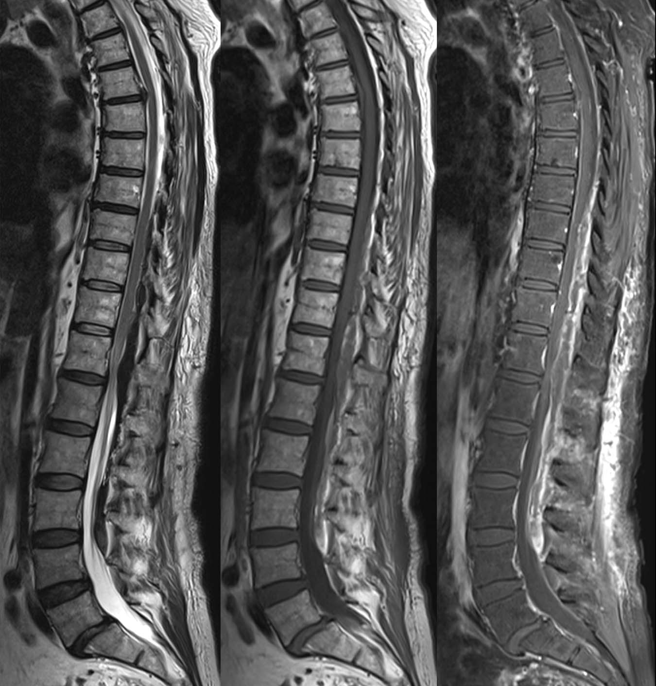 Epidural hematoma, spine, illustrating image composition — Clinical MRI