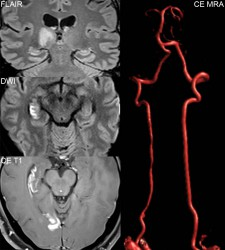 Late subacute, enhancing PCA distribution infarcts, secondary to dissection of the right vertebral artery