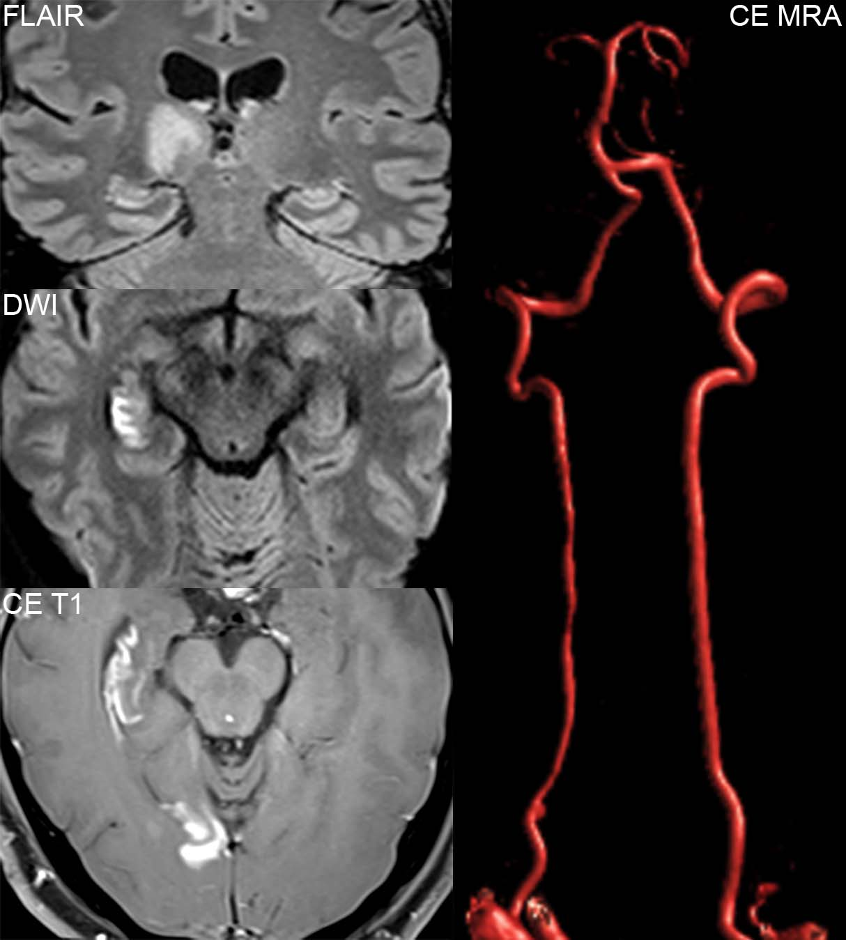 Late Subacute Enhancing Pca Distribution Infarcts Secondary To