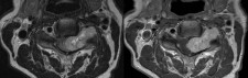 Schwannoma at C3-4 on the left, within the neural foramen and compressing the cord